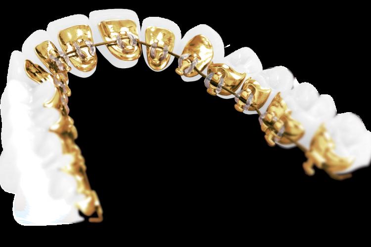Ortodontija v Ortodentu