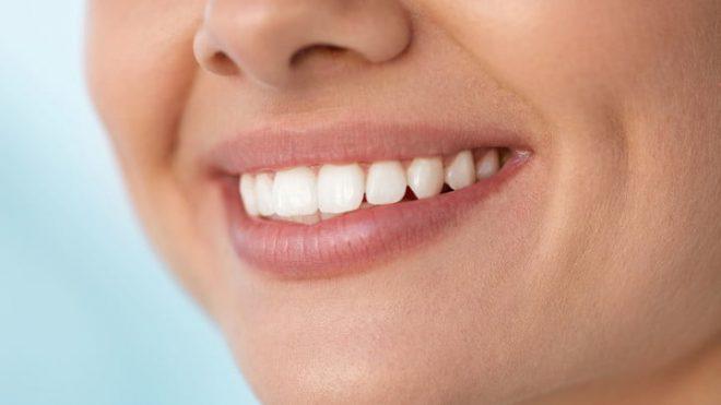 Prednosti ravnih zob