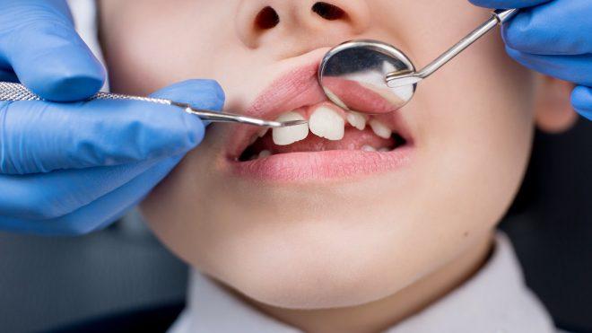 Ortodontski pregled – osnova za postavitev pravilne diagnoze in optimalnega načrta zdravljenja