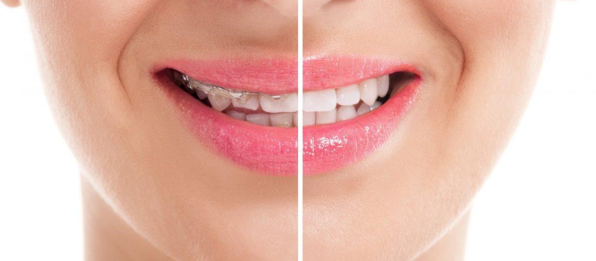 Fiksni retener – zakaj ga je treba nositi po zaključenem ortodontskem zdravljenju?